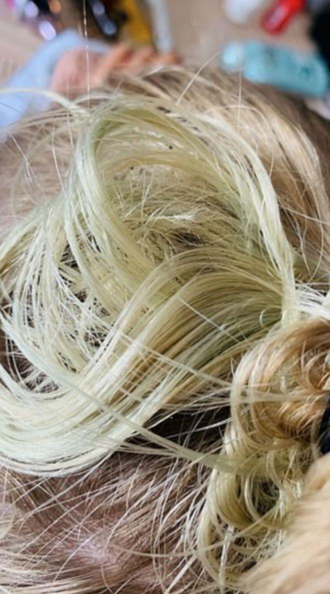 Καταγγελία Βρετανών: Πρασίνισαν τα μαλλιά τους μετά από βουτιά σε πισίνα πεντάστερου στην Κω