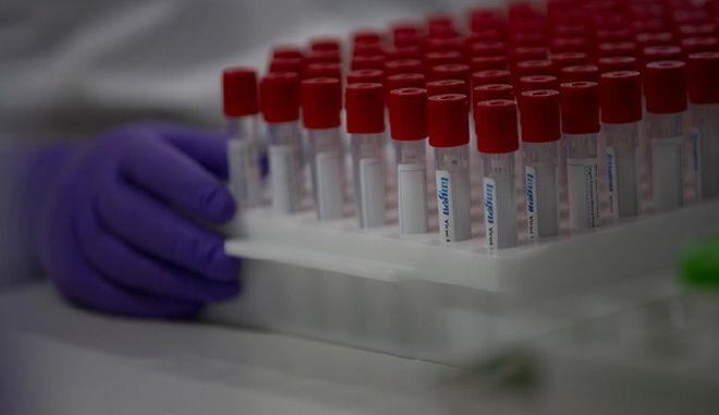 ΗΠΑ: Πριν τα τέλη Αυγούστου η παραγωγή εμβολίου κατά του κορονοϊού