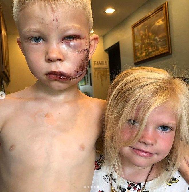 ΗΠΑ: 6χρονος ήρωας έσωσε την αδερφή του από τα δόντια σκύλου