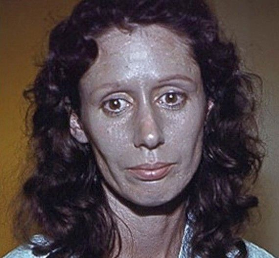 Pic By HotSpot Media - WOMAN'S SKIN TURNED SILVER AFTER TAKING NOSE DROPS -IN PIC -  Rosemary Jacobs, shown here in 1978 aged 36 just before her face dermabrasion  -An American woman whose skin turned silver after using nose drops is warning people of the dangers of medicines containing the metal. Rosemary Jacobs, 71, has lived with irreversible skin condition argyria for 60 years and it has blighted her life. The retired pre-school teacher's skin started to turn metallic silver when she began taking nasal drops containing colloidal silver (CS) at the age of 11. Four years later a skin biopsy revealed silver particles bound deep beneath her skin and she was diagnosed with argyria. Rosemary, from Vermont, USA said: When I was 11 years old, my mother mentioned to an ENT specialist that I always had a cold. SEE HOTSPOT COPY 0121 551 1004