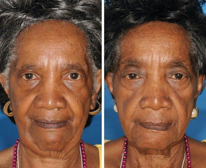Φωτογραφίες δίδυμων που αποδεικνύουν ότι το κάπνισμα προκαλεί πρόωρη γήρανση