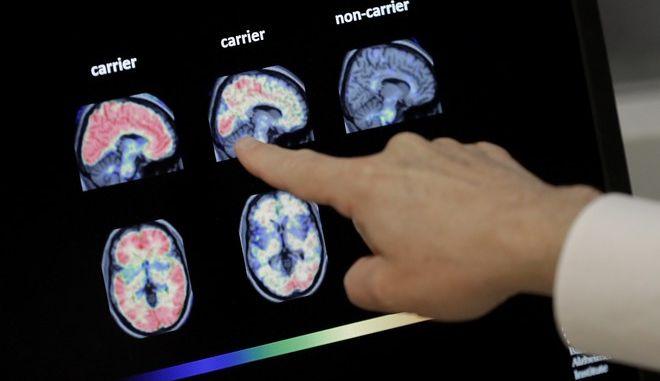 Εξέταση για τη νόσο Αλτσχάιμερ