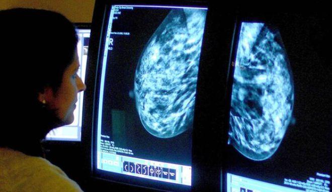 Κοκτέιλ φαρμάκων συρρίκνωσε όγκους από τον μαστό σε 11 ημέρες