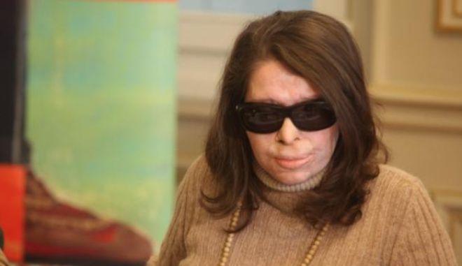 Εξομολόγηση Κ. Κούνεβα: Έχει πάρει μόνο τη μισή αποζημίωση για τη θεραπεία της - ασύλληπτοι οι δράστες πέντε χρόνια μετά