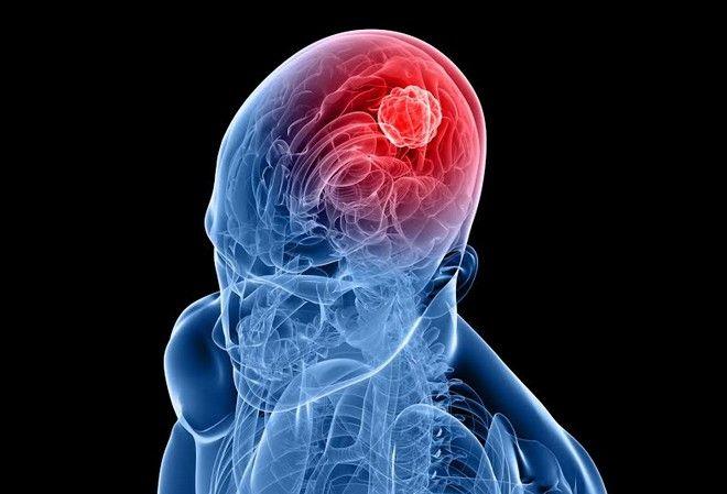 Κακές αναμνήσεις; Σβήνουν με θεραπεία - σοκ