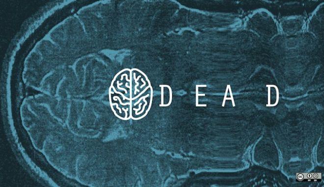 Εγκεφαλικός θάνατος: Η λεπτή διαχωριστική γραμμή μεταξύ ζωής και θανάτου