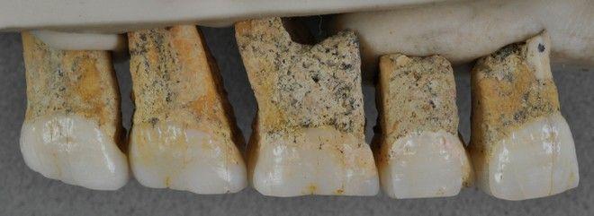 Επιστήμονες ανακάλυψαν τα λείψανα άγνωστου είδους ανθρώπου