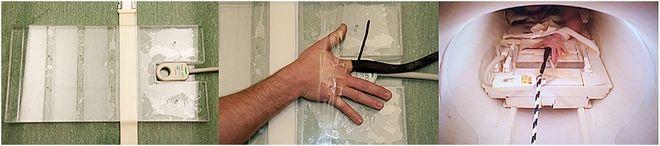 Λύθηκε το μυστήριο: Γιατί κάνουν 'κρακ-κρακ' τα δάχτυλα μας