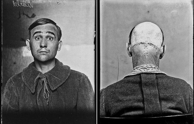 Η εικόνα τους θα σε στοιχειώσει: Αυτοί είναι οι πρώτοι ασθενείς που υπεβλήθησαν σε επέμβαση εγκεφάλου