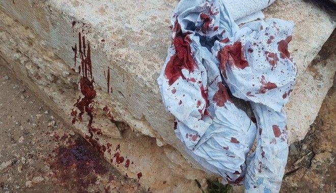 Καταγγελία: Φασίστες μας επιτέθηκαν με σιδερογροθιές