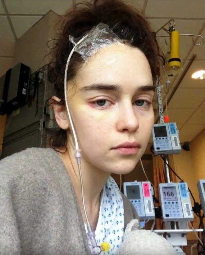 Η Εμίλια Κλαρκ μετά το χειρουργείο