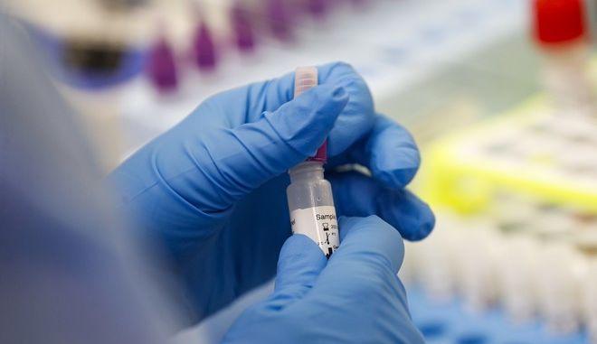 Νοσηλεύτρια ασθενών με κορονοϊό κρατά τεστ