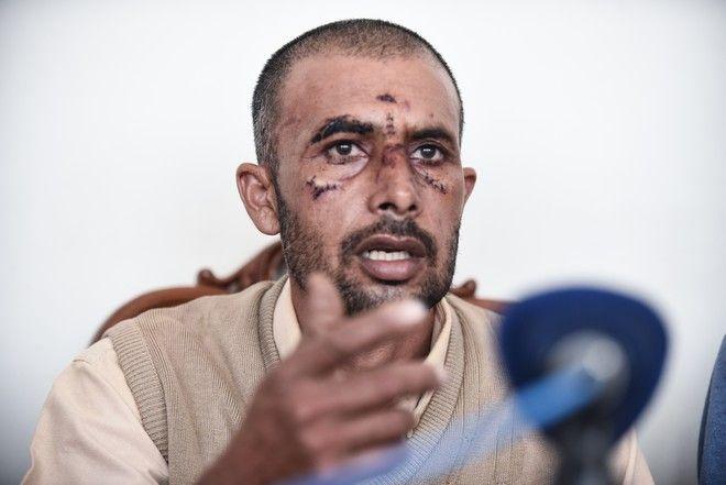 Εκτακτη συνέντευξη τύπου που δόθηκε σήμερα το μεσημέρι απο τον Ασφάκ Μαχμούτ, θύμα ρατσιστικής επίθεσης, στην Γκόρυτσα Ασπροπύργου. Δευτέρα 9 Οκτώβρη 2017. (EUROKINISSI / ΤΑΤΙΑΝΑ ΜΠΟΛΑΡΗ)