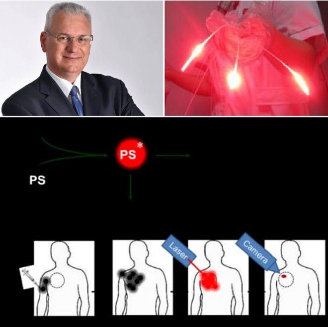Φωτοδυναμική θεραπεία: Η νέα, επαναστατική θεραπεία για τον καρκίνο του πνεύμονος