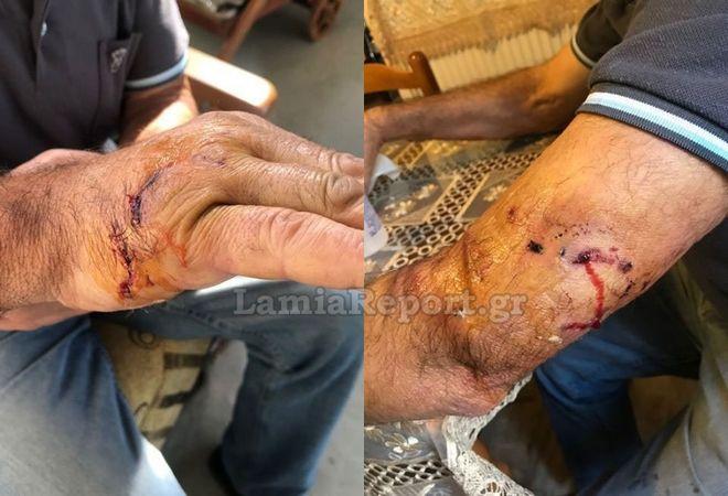 Τα σημάδια από την επίθεση από σκύλο που δέχτηκε άνδρας στη Λαμία