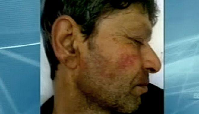 Μικροπωλητής καταγγέλλει ξυλοδαρμό από μέλη της Χρυσής Αυγής