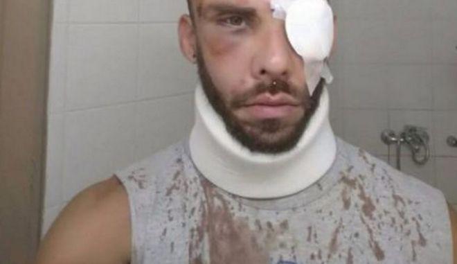 Εντοπίστηκαν οι Γάλλοι που ξυλοκόπησαν φοιτητή στην Κρήτη