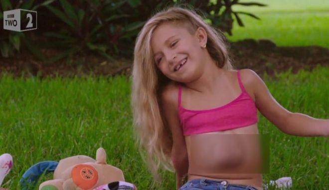 H καρδιά αυτού του 7χρονου κοριτσιού χτυπά έξω από το στήθος του