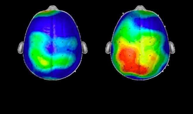 Πώς το κολύμπι ενεργοποιεί τον εγκέφαλό μας