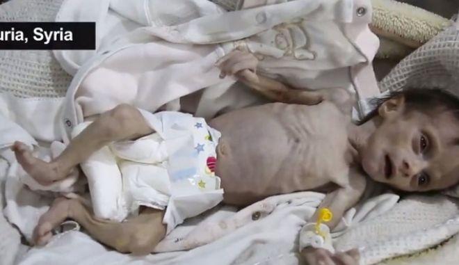 Σοκαριστικές εικόνες: Στη Συρία τα παιδιά πεθαίνουν από την πείνα