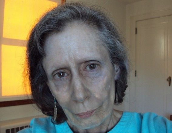 Pic By HotSpot Media - WOMAN'S SKIN TURNED SILVER AFTER TAKING NOSE DROPS -IN PIC -Rosemary Jacobs, as she is today, has lived with argyria - a skin condition which turned her skin silver - for 60 years -An American woman whose skin turned silver after using nose drops is warning people of the dangers of medicines containing the metal. Rosemary Jacobs, 71, has lived with irreversible skin condition argyria for 60 years and it has blighted her life. The retired pre-school teacher's skin started to turn metallic silver when she began taking nasal drops containing colloidal silver (CS) at the age of 11. Four years later a skin biopsy revealed silver particles bound deep beneath her skin and she was diagnosed with argyria. Rosemary, from Vermont, USA said: When I was 11 years old, my mother mentioned to an ENT specialist that I always had a cold. SEE HOTSPOT COPY 0121 551 1004