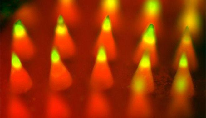 Πειραματικό 'τσιρότο' με μικροβελόνες για τοπική αντικαρκινική ανοσοθεραπεία του μελανώματος
