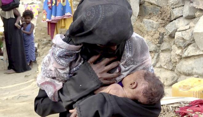 Συνολικά 5,2 εκατ, παιδιά απειλούνται από λιμό στη σπαρασσόμενη από τον πόλεμο Υεμένη