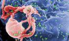 Νέα θεραπεία αντισωμάτων καθυστερεί την επανεμφάνιση του ιού HIV του AIDS