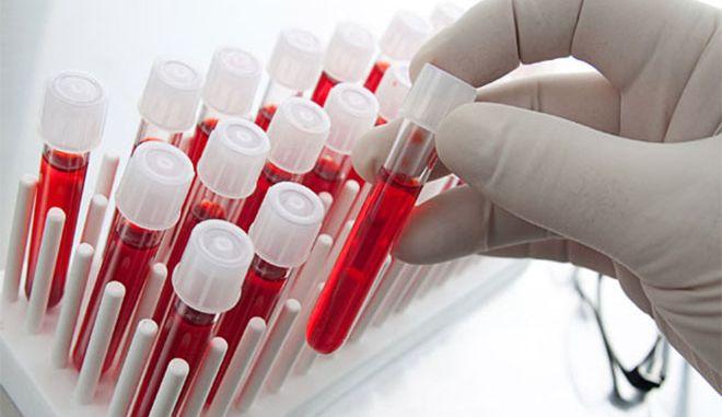 Πράσινο φως για τη λειτουργία χώρου αιμοληψίας εκτός διαγνωστικού εργαστηρίου αλλά …με προϋποθέσεις