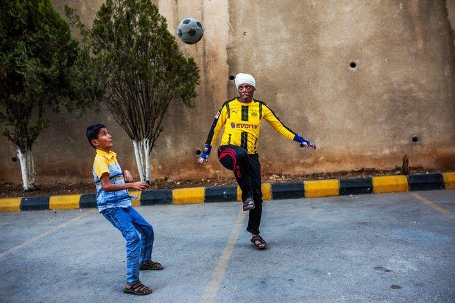 Τραυματίες πολέμου επιστρέφουν στη ζωή σε ένα καινοτόμο νοσοκομείο των Γιατρών Χωρίς Σύνορα
