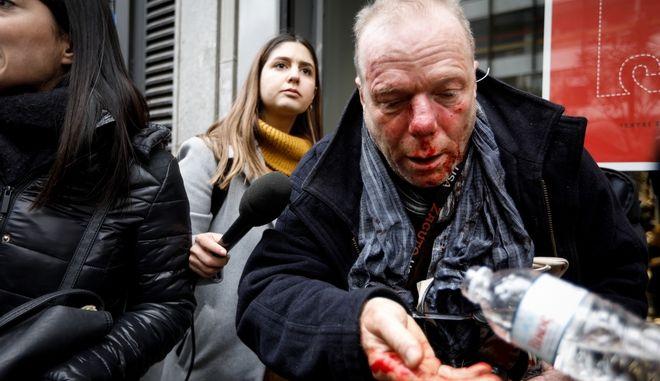 Ο Θωμάς Ιακόμπι που δέχθηκε την επίθεση.