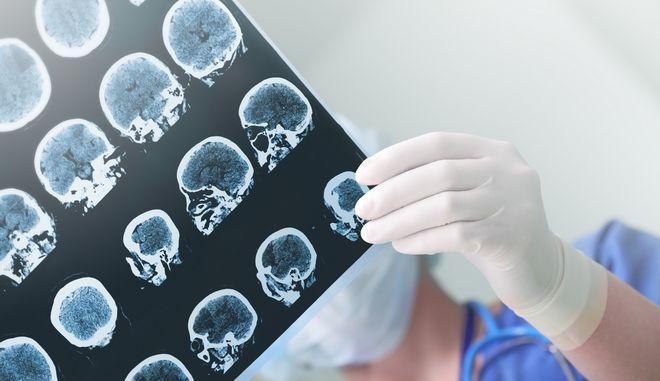 Εξετάσεις στο κεφάλι ασθενή (φωτογραφία αρχείου)
