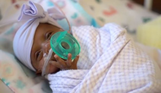 Το μικρότερο μωρό στον κόσμο