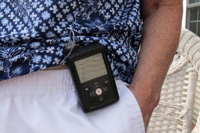 Η Jean Grady φοράει αντλία ινσουλίνης για την διαχείριση του διαβήτη της, 24 Αυγούστου 2020. Πριν από την πανδημία, ταξίδευε υποχρεωτικά ανά 2 ημέρες για να συναντήσει τον γιατρό της, αλλά πλέον τον συναντά μέσω τηλεδιάσκεψης.