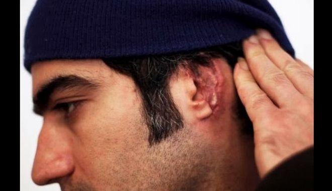 Έρευνα για την επίθεση σε βάρος Ιρανού διέταξε η Εισαγγελία Πρωτοδικών