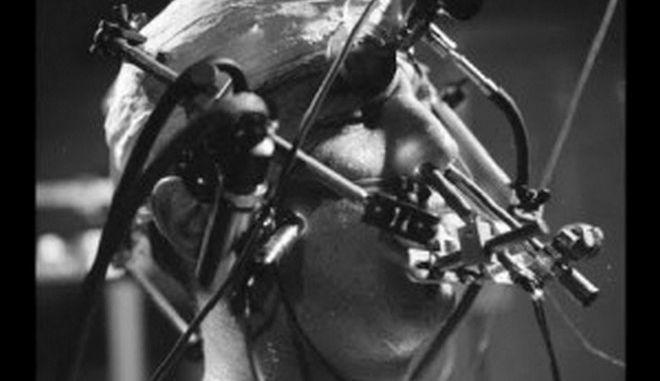 Αυτά είναι τα 5 πιο σοκαριστικά ιατρικά πειράματα επάνω σε άνθρωπο