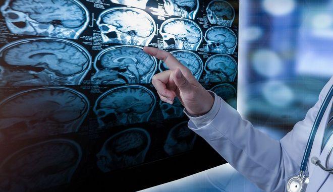 Αξονική Τομογραφία Εγκεφάλου