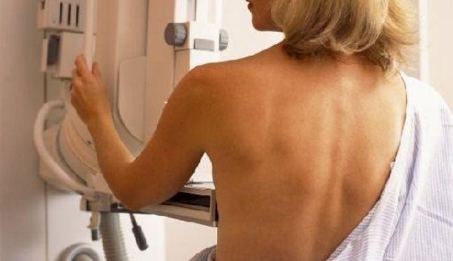 Έρευνα: Το 1/3 των μαστογραφιών ανιχνεύει ανύπαρκτους καρκίνους