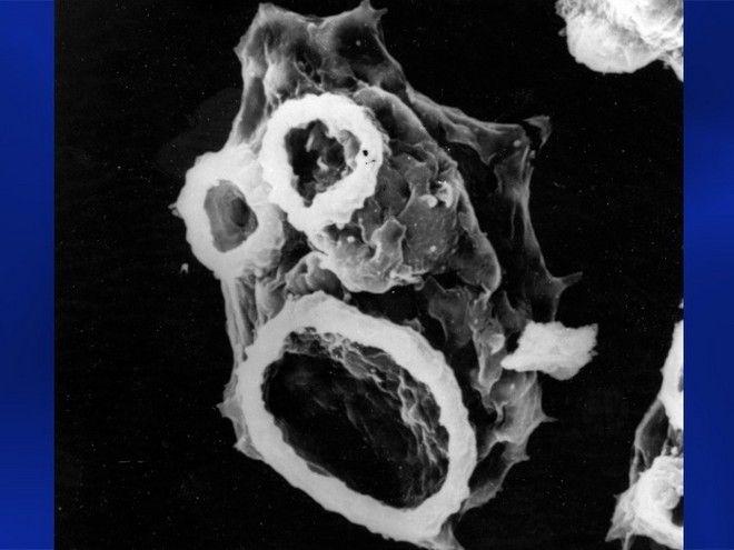 Τα 10 πιο θανατηφόρα - μικροσκοπικά πλάσματα του κόσμου