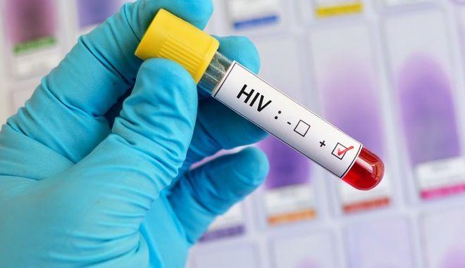 Τεστ για HIV