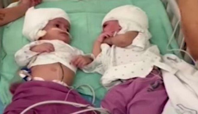 Τα ενός έτους κοριτσάκια μετά τη χειρουργική επέμβαση
