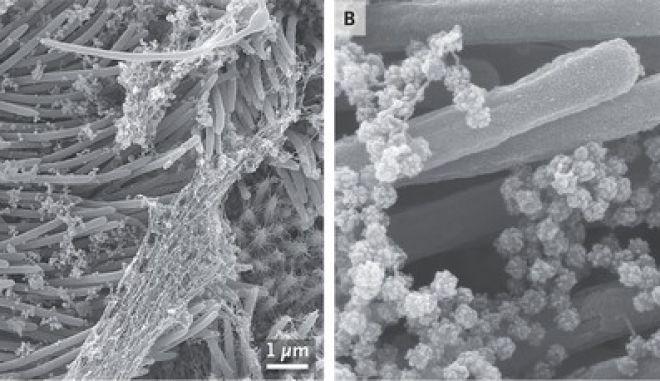 Ο SARS-CoV-2 που καταλαμβάνει πνευμονικό κύτταρο