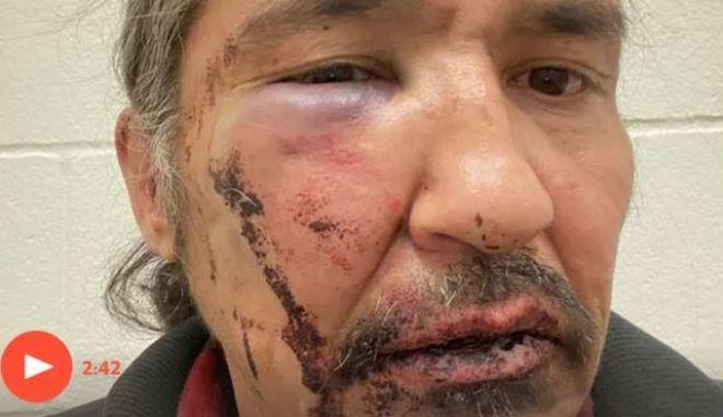 """Καναδάς: Ινδιάνος χτυπήθηκε από αστυνομικούς επειδή είχε """"ληγμένες"""" πινακίδες"""