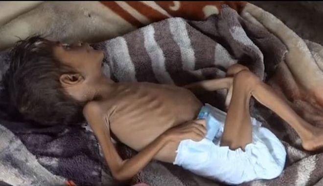 Υοσιτισμένο παιδί στην Υεμένη