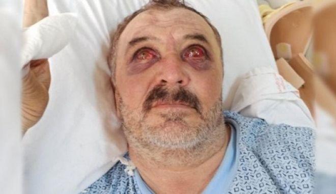 Τουρκία: Βασάνισαν φρικτά δύο Κούρδους πετώντας τους από ελικόπτερο