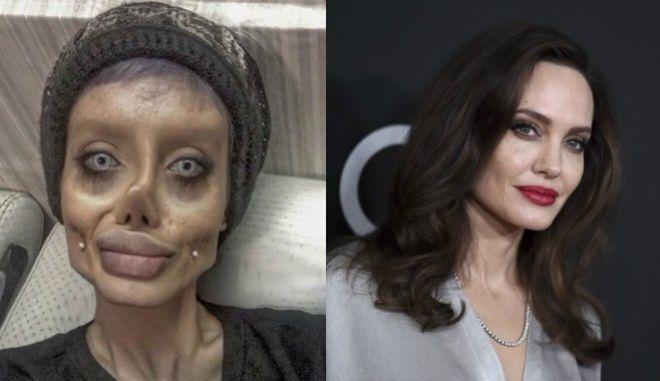 Με make up και photoshop 'παραμορφώθηκε' η 19χρονη που ήθελε να μοιάσει στη Τζολί