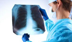 Ακτινογραφία ασθενούς με καρκίνο του πνεύμονα