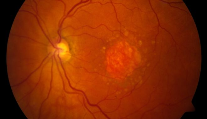 This image provided by the National Eye Institute shows a microscopic image of a retina being damaged by the so-called dry form of age-related macular degeneration. An experimental drug is showing promise against an eye disease that blinds older adults. Age-related macular degeneration gradually erodes seniors central vision, making it difficult to read or see faces. (National Eye Institute via AP)