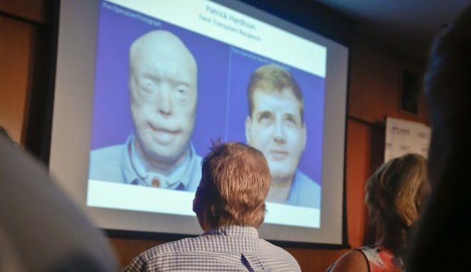 Former Mississippi firefighter Patrick Hardison, 42, center, views a video showing progression of his face transplant, during a press conference marking one year after his surgery, Wednesday Aug. 24, 2016, at New York University Langone Medical Center in New York. Hardison was disfigured while trying to save people from a house fire in 2001 and received the face of a Brooklyn cyclist who died in an accident in July 2015-- a surgery successfully perform by a team of doctors at NYU Langone. (AP Photo/Bebeto Matthews)