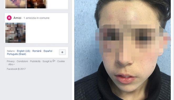 """Il post di denuncia del padre di un ragazzo di 13 anni, vittima di bullismo, pubblicato sul profilo Facebook dell'uomo che lancia un appello a quanti sono vittime di violenza a denunciare """"perché gli autori di tali soprusi non devono passarla liscia"""". Napoli, 18 marzo 2017. +++ATTENZIONE LA FOTO NON PUO' ESSERE PUBBLICATA O RIPRODOTTA SENZA L'AUTORIZZAZIONE DELLA FONTE DI ORIGINE CUI SI RINVIA+++"""